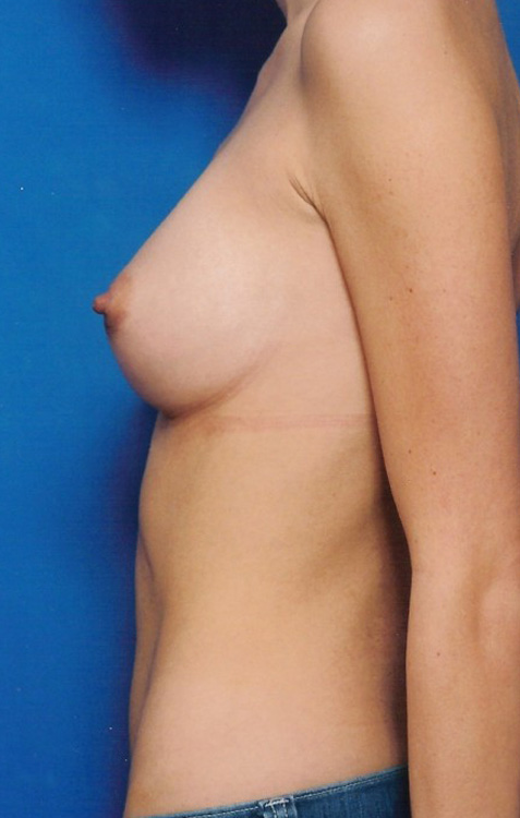 Another after picture for Case 4 Breast Augmentation Before and After Photos