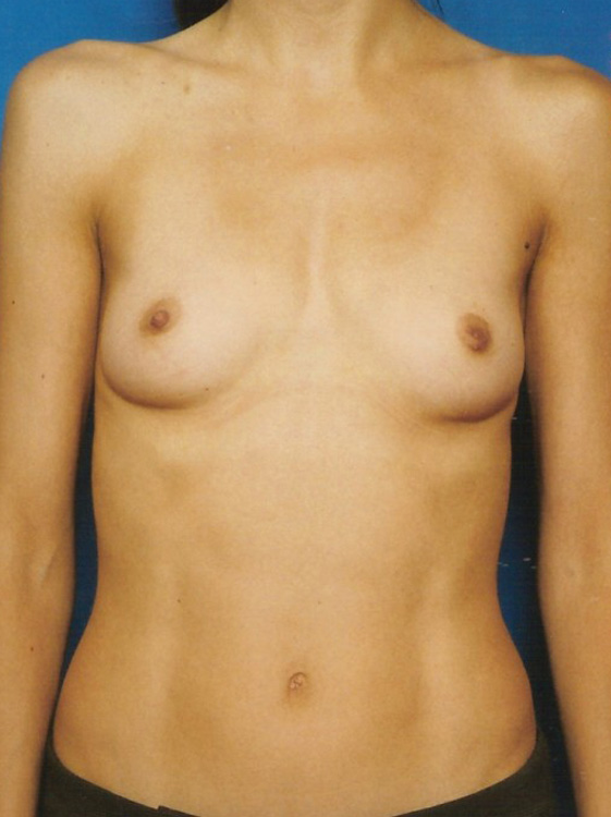 Another before picture for Case 5 Breast Augmentation Before and After Photos